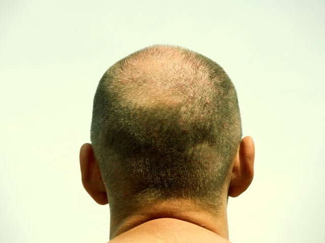 The Baldness Myth featured image