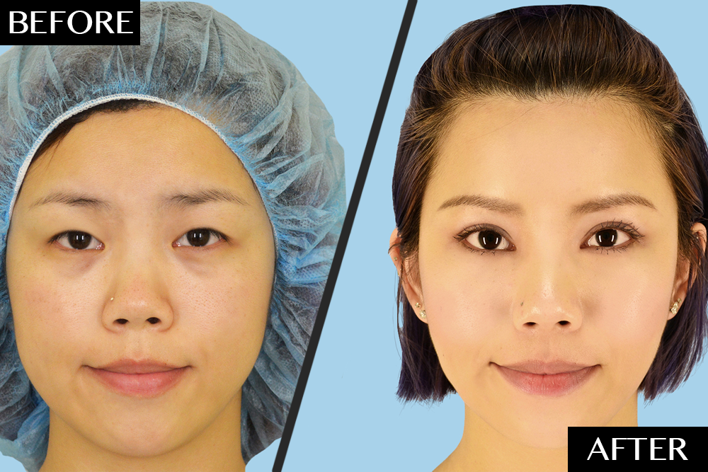 Plastic Surgeons Dispel the Common Misconception Behind Asian Double Eyelid Surgery featured image