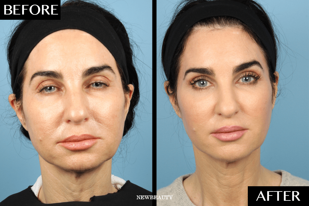 The Nonsurgical Procedure That Gave This 52-Year-Old Woman the Look of a Full Facelift featured image