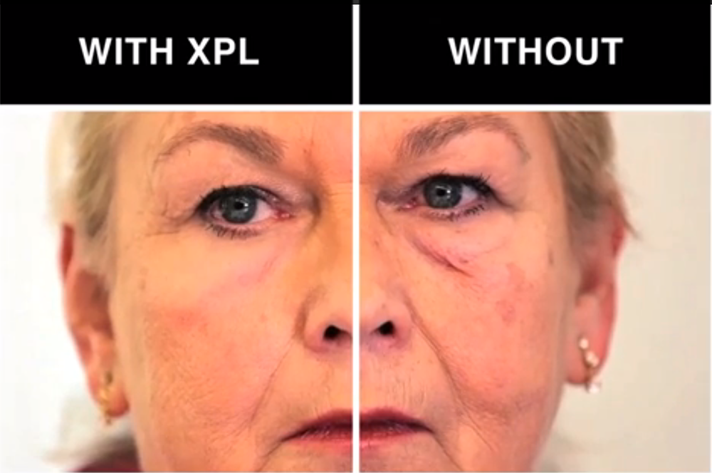 Scientists Have Developed a Cream That Smooths Wrinkles and Removes Eye Bags featured image