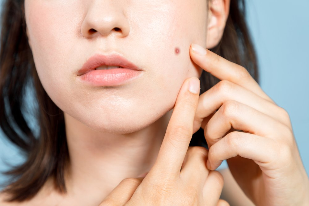 The Ultimate Guide to Adult Acne featured image