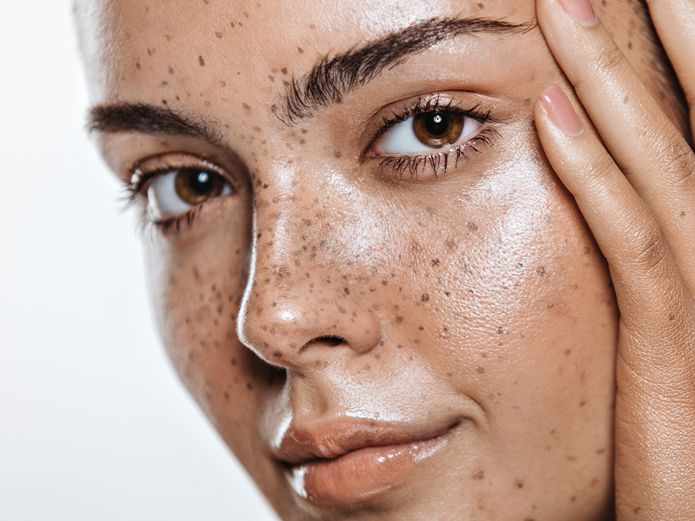 How to Keep Your Freckles Safe, According to 4 Experts featured image